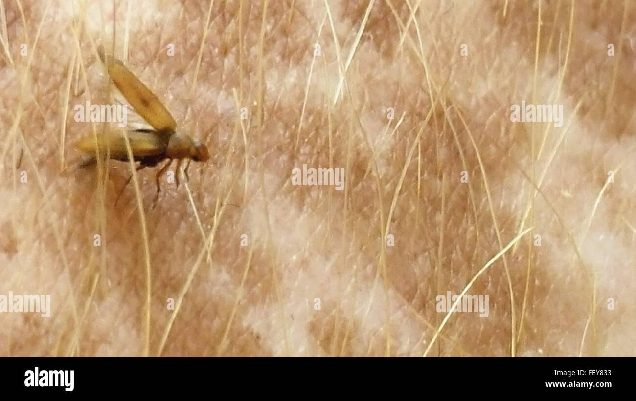 Primo piano di un insetto sulla pelle umana Immagini Stock