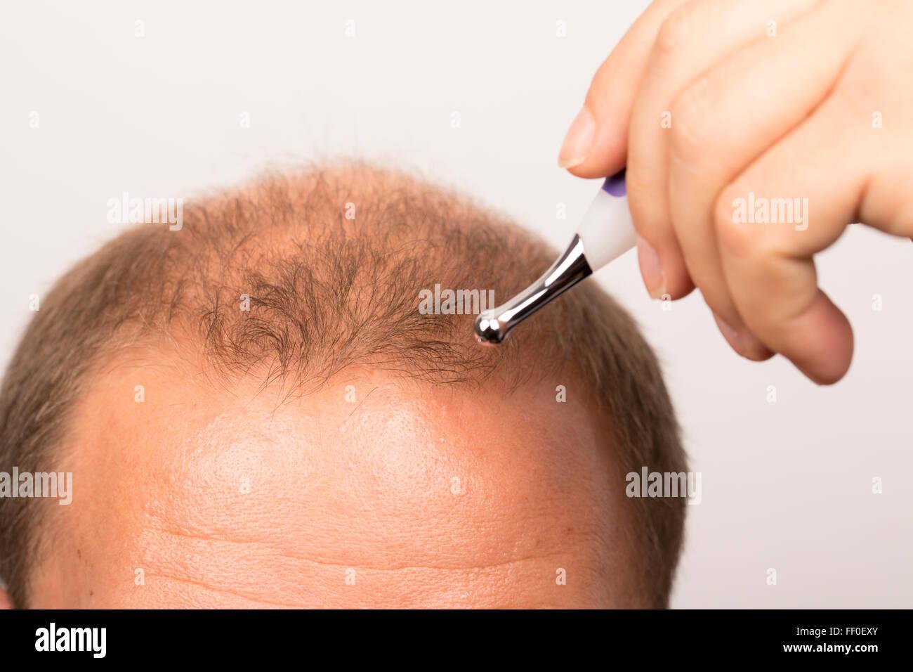 L uomo controlla la perdita di capelli alopecia stress il trattamento del  cancro c97a023906b0