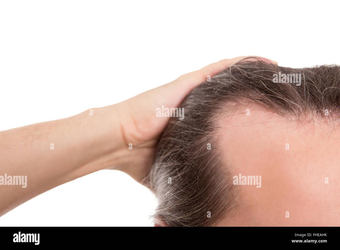 Uomo con receding hairline, closeup isolato su bianco, concetto alopecia e calvizie Immagini Stock