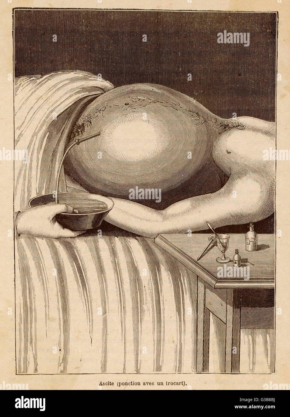 Fluido asportato da un addome del paziente utilizzando un svuotamento dello stomaco. Data: circa 1870 Immagini Stock