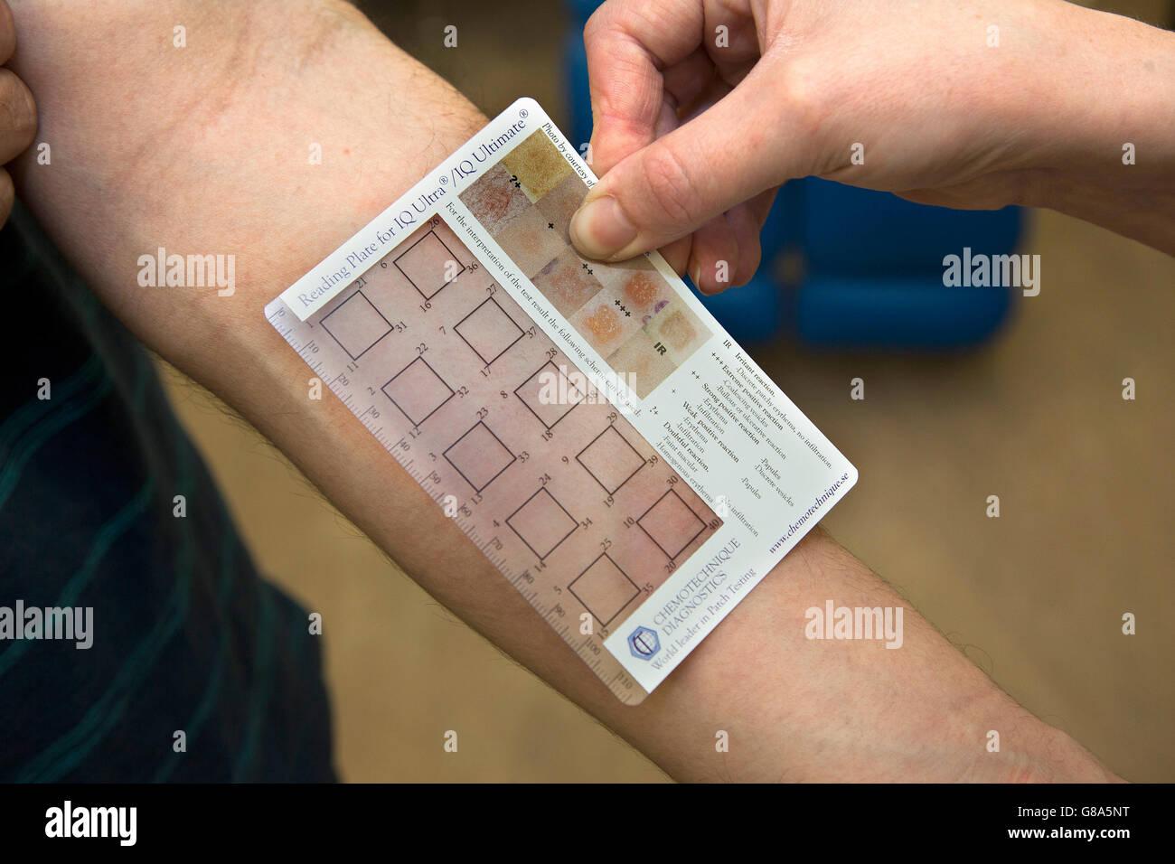 Il dermatologo con un IQ Ultra patch per il test per le allergie Immagini Stock
