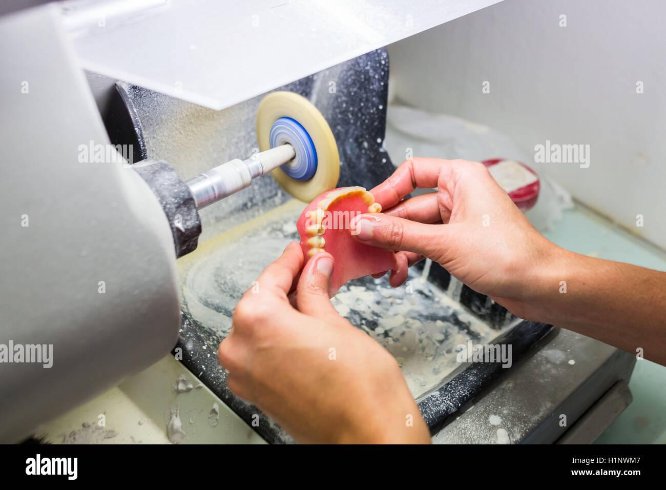 Fabbricazione di protesi completa. Immagini Stock