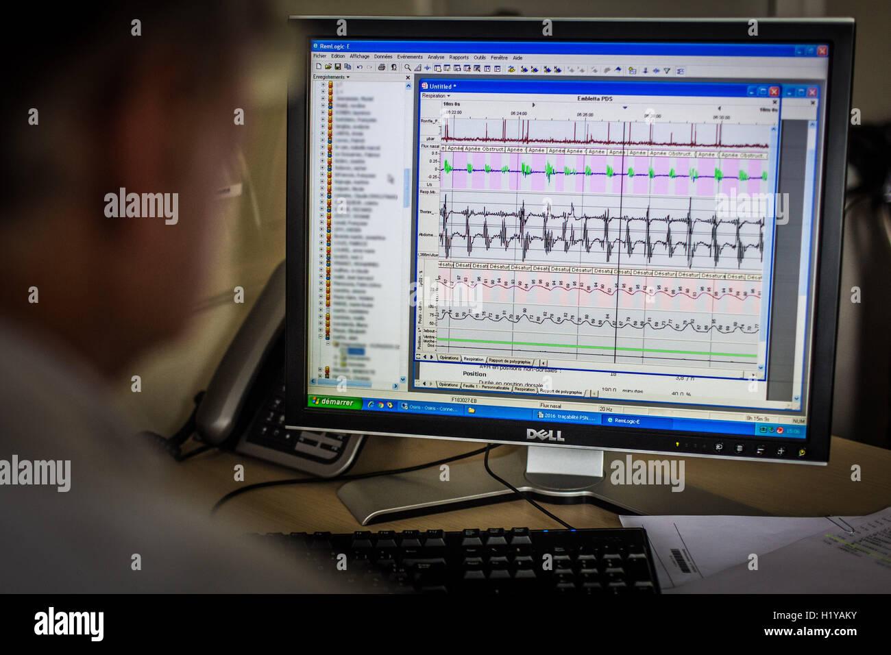 Relazione poligrafo che mostra una apnea nel sonno. Immagini Stock