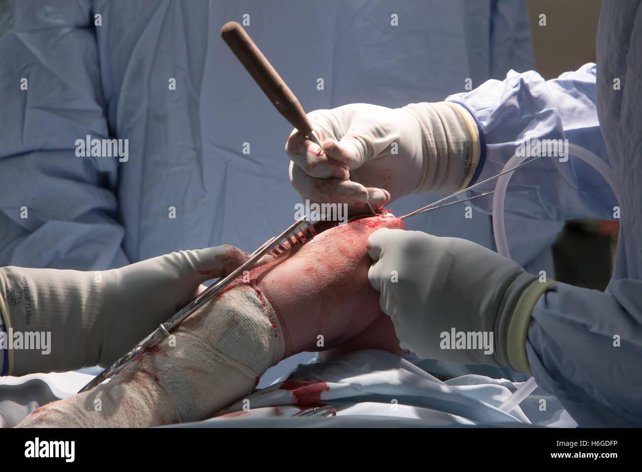 La fissazione esterna della testa radiale del gomito.chirurghi eseguono un'operazione a gomito Immagini Stock
