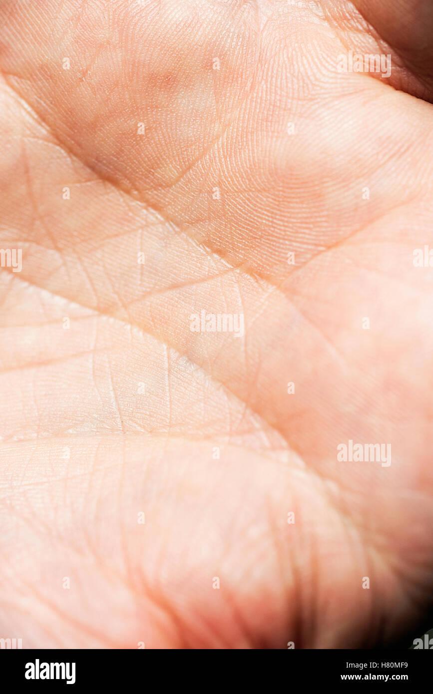 La pelle sul palmo di una mano di un uomo. Immagini Stock