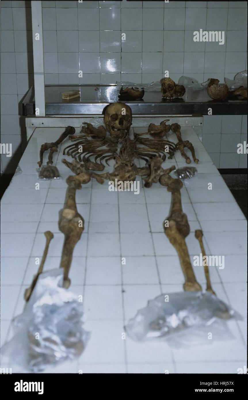 Prove forensi, ricostruzione dello scheletro, 1985 Immagini Stock