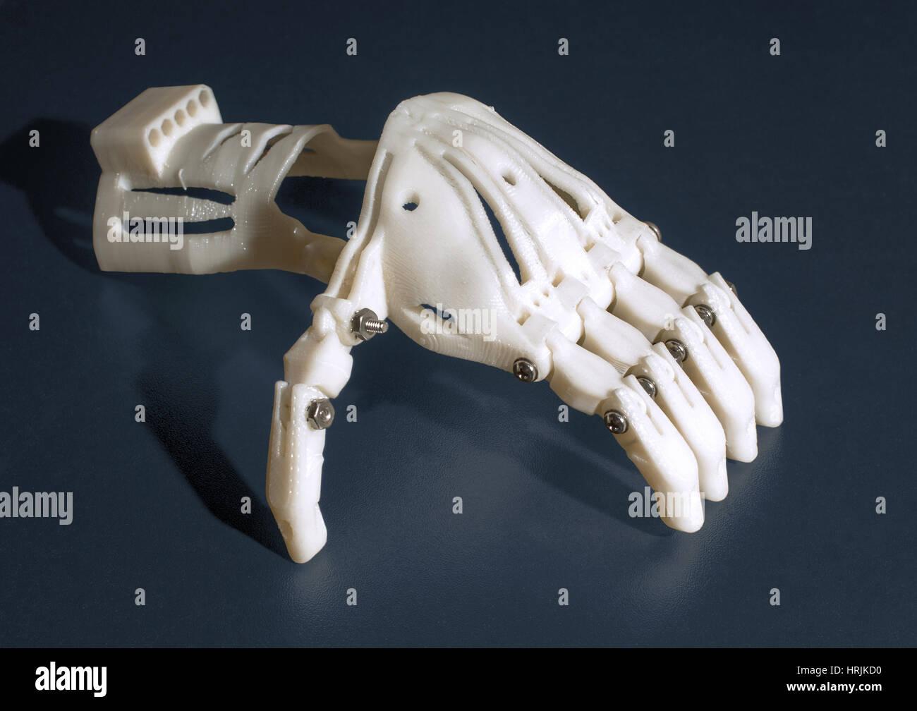 3-D stampata a mano protesico, 2015 Immagini Stock