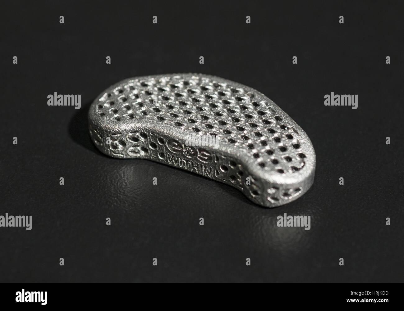 3-D stampato disco spinale, 2015 Immagini Stock