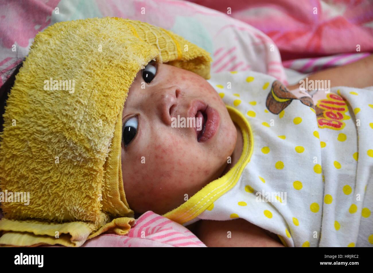 Bambino con il morbillo rash, 2014 Immagini Stock
