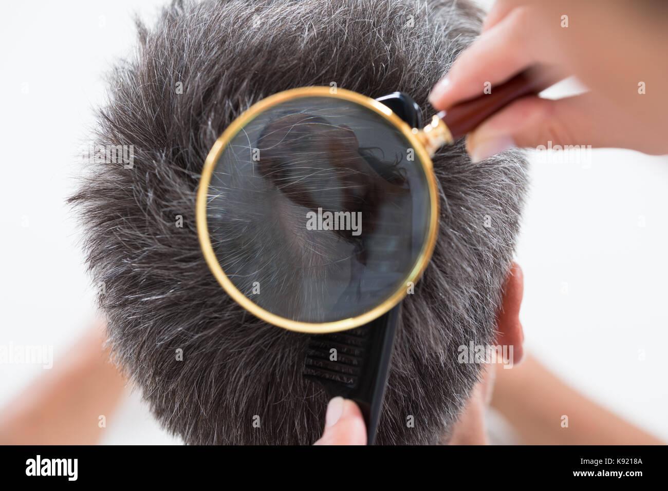 Angolo di alta vista del dermatologo controllo paziente i capelli nella  lente di ingrandimento 83480ba1bdd1