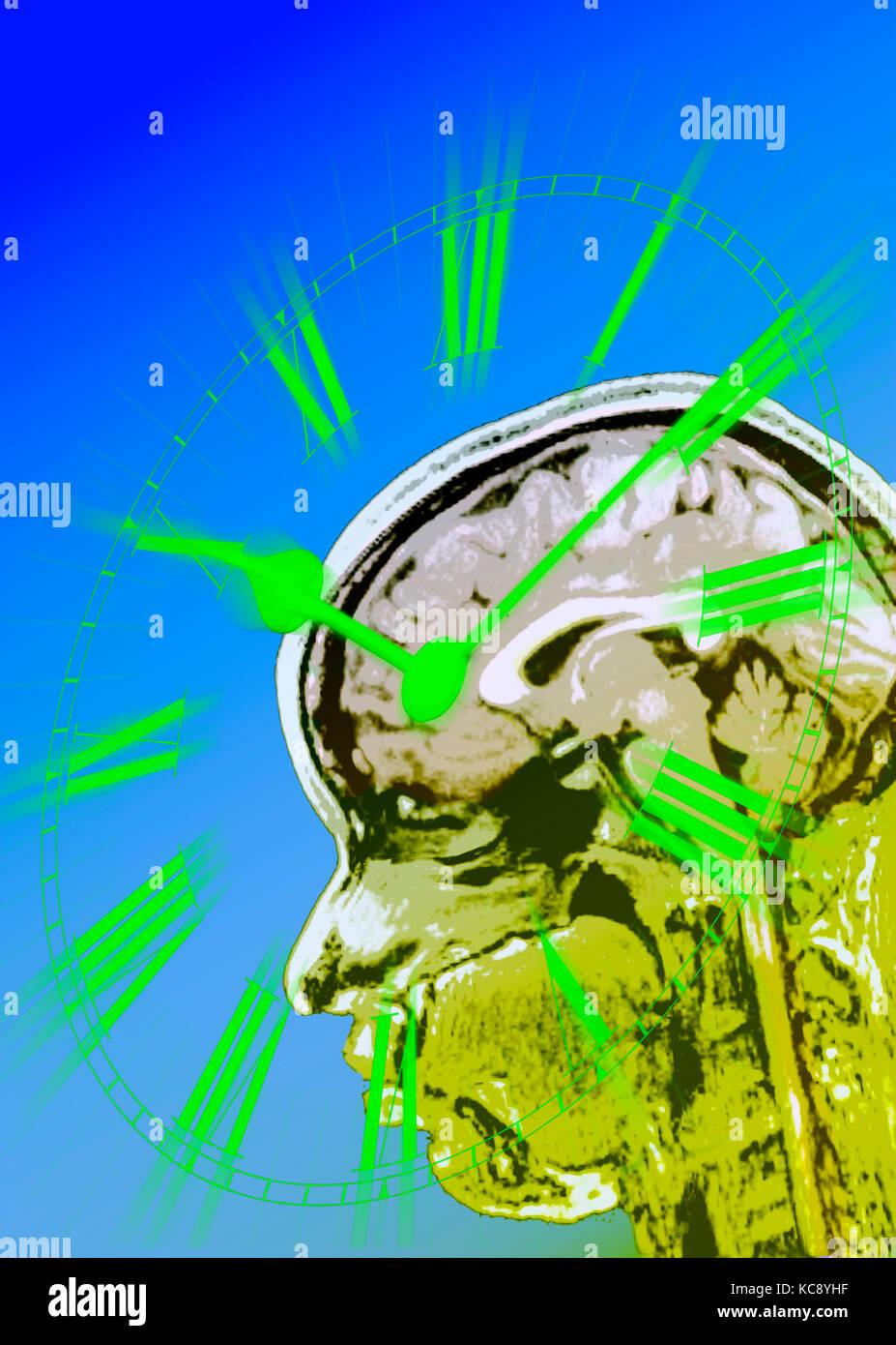 Multi-immagine di orologio e scansioni MRI per rappresentare il corpo-clock o ritmo circadiano senso nel cervello Foto Stock