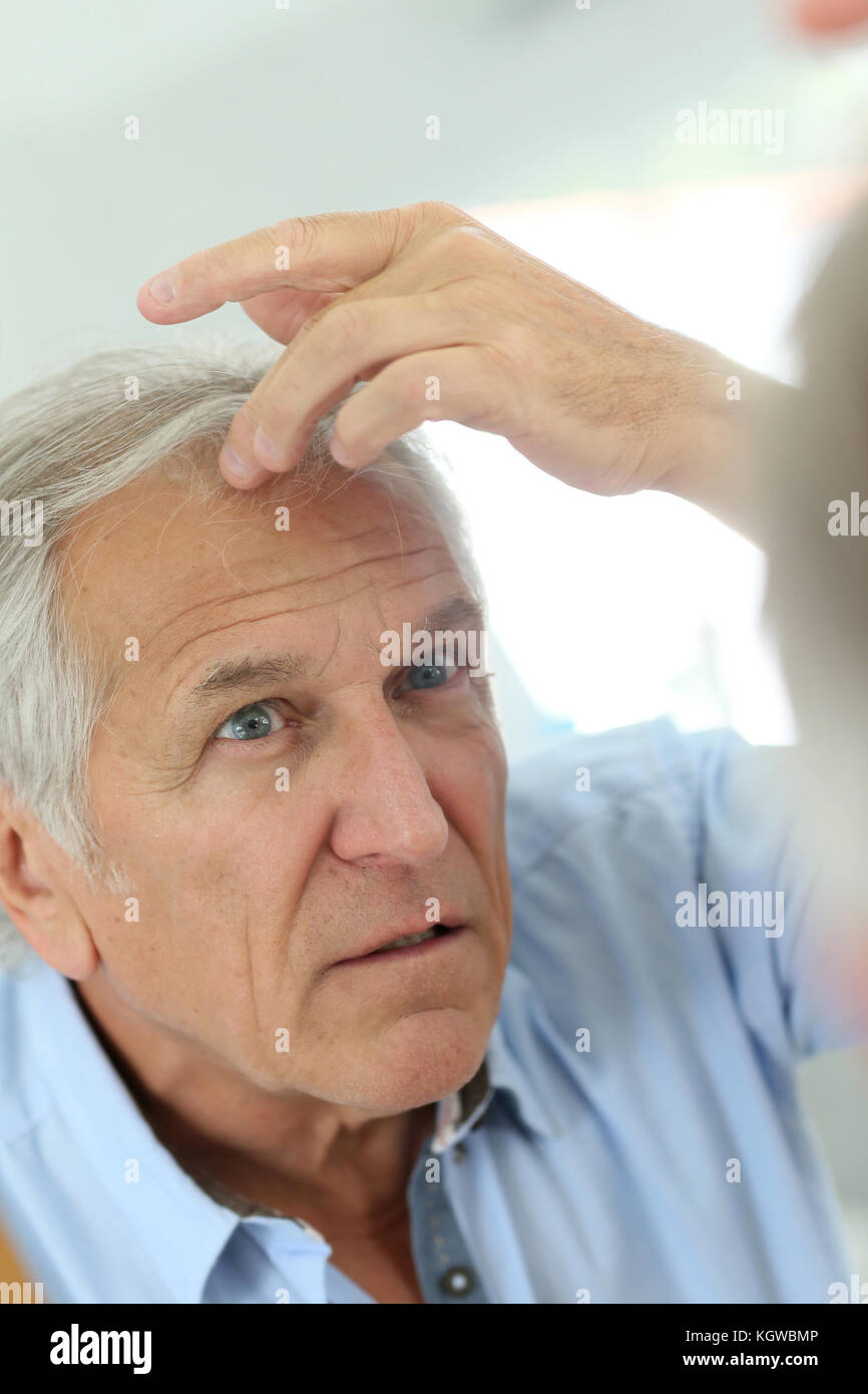 Senior uomo interessato dalla perdita dei capelli Immagini Stock