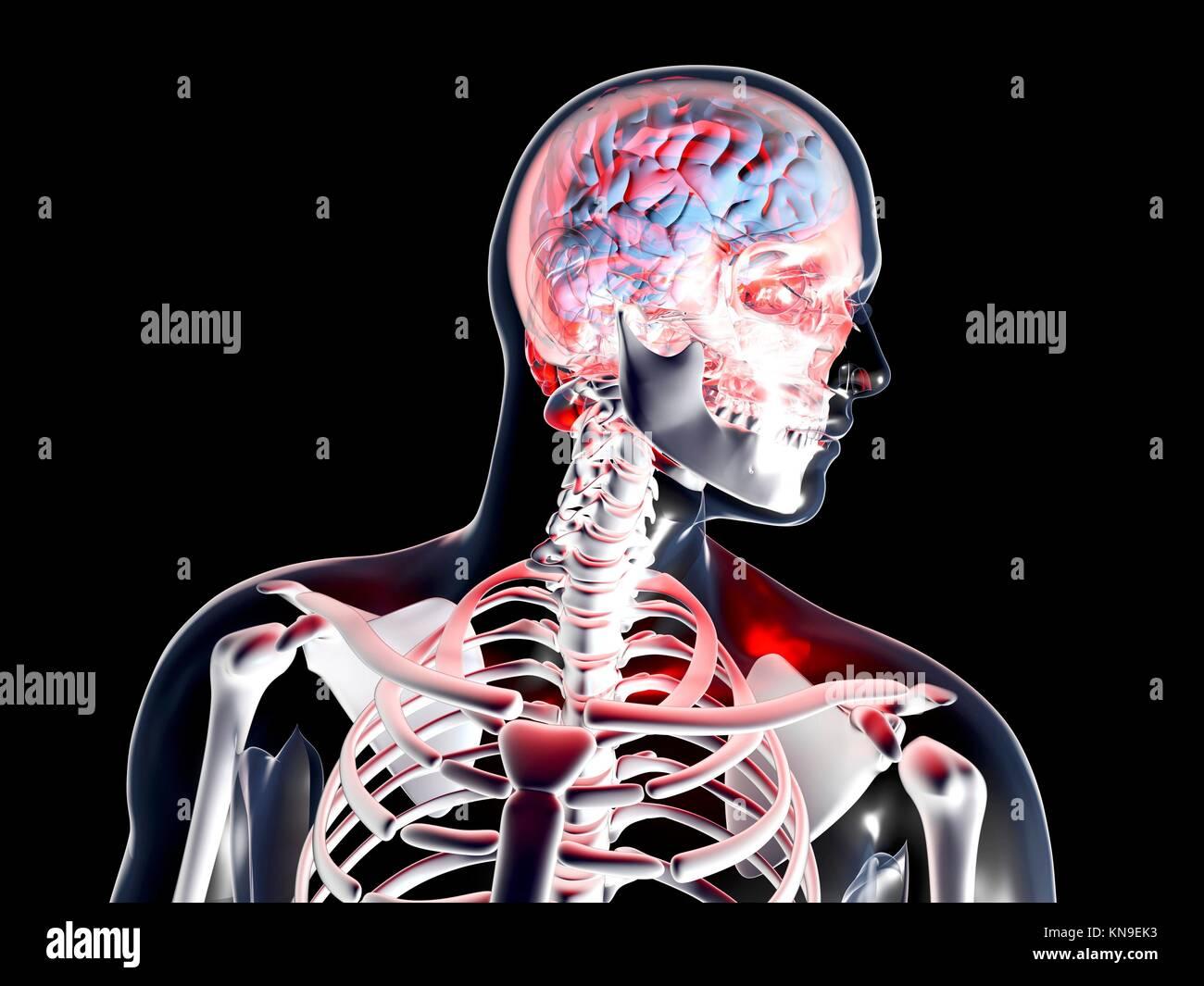 Mal di testa e depressione. 3D reso illustrazione. Isolato su nero. Immagini Stock