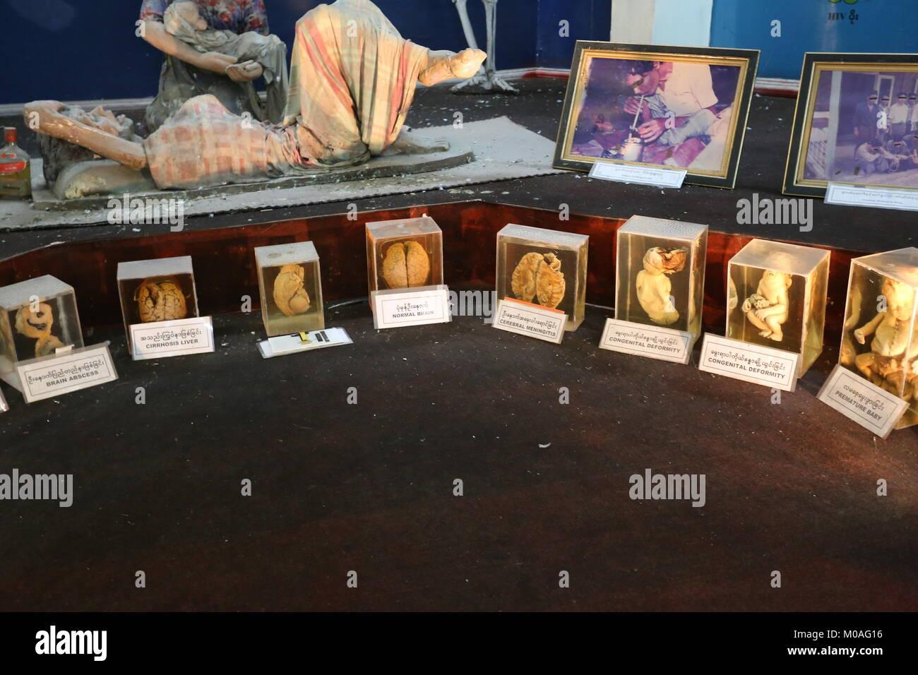 Il farmaco eliminazione Museum di Yangon è riempito con display di segnalazione di pericoli e rischi della tossicodipendenza. Foto Stock