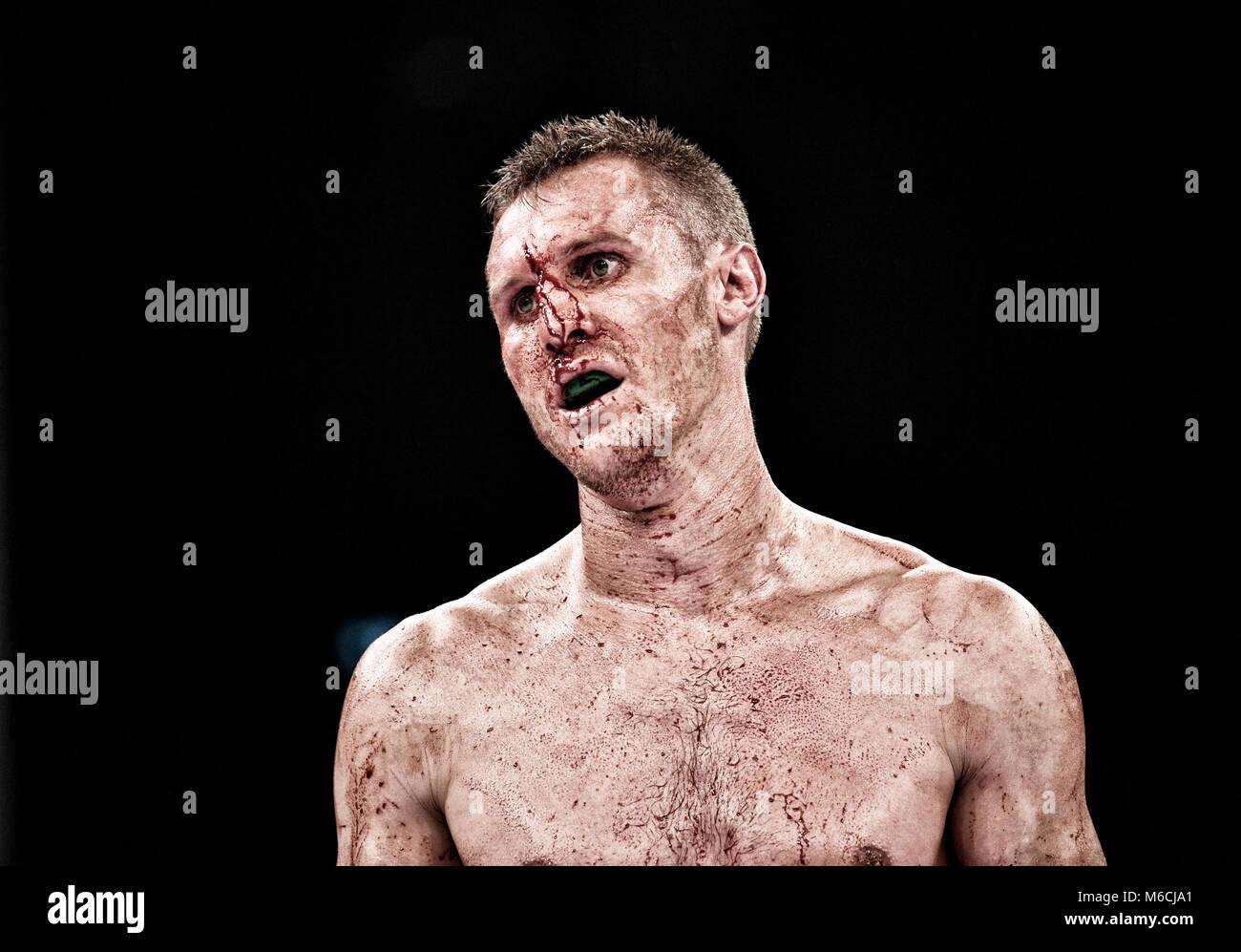 Il pugilato, Ryno Liebenberg, insanguinato, deluso dopo aver interrotto la lotta, technical knockout MHP-Arena, Immagini Stock