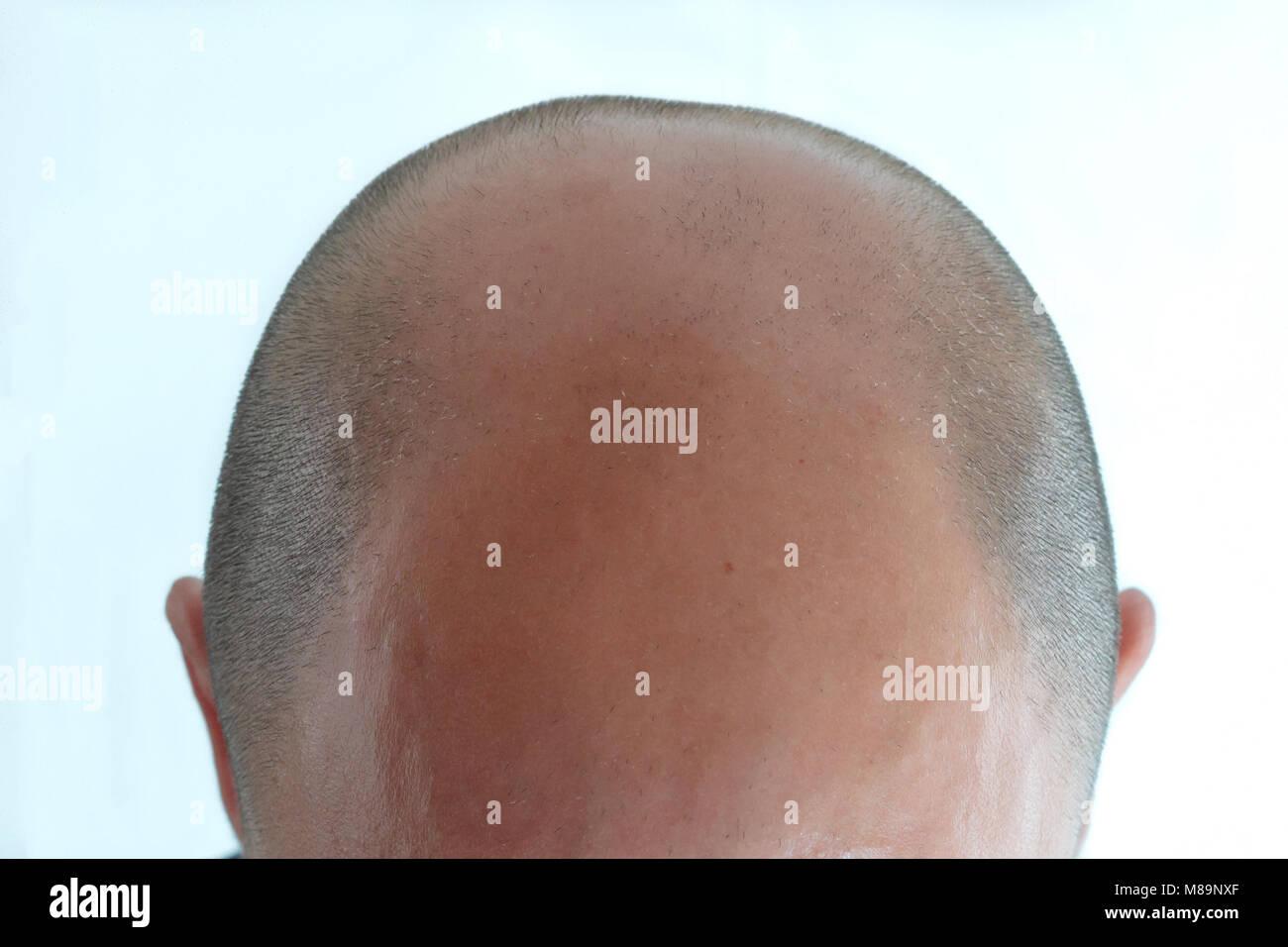 Vista di uomo calvo di testa con la perdita dei capelli Immagini Stock