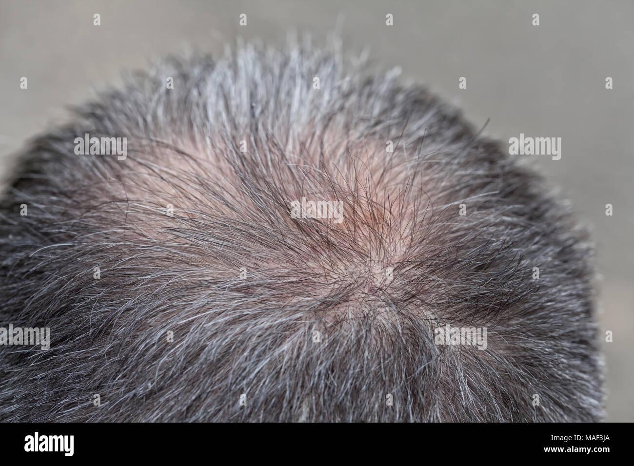 Un uomo di mezza età inizia a perdere i capelli sulla sua testa. Immagini Stock
