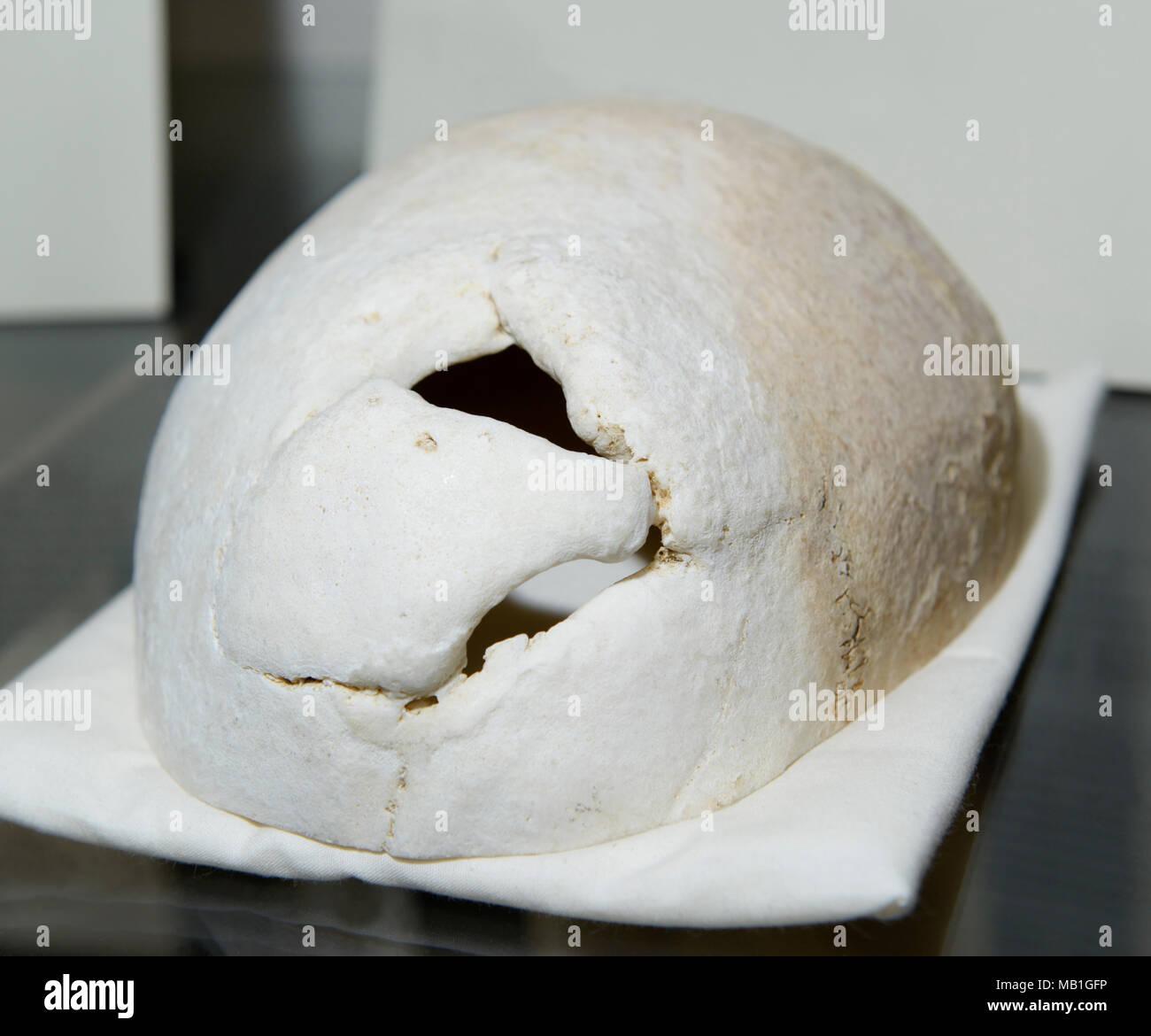 Phineas Gage cranio, sul display presso la Harvard Medical School. Foro nel cranio mostra dove ferro costipatore è andato attraverso il suo lobo frontale nel 1848. Immagini Stock