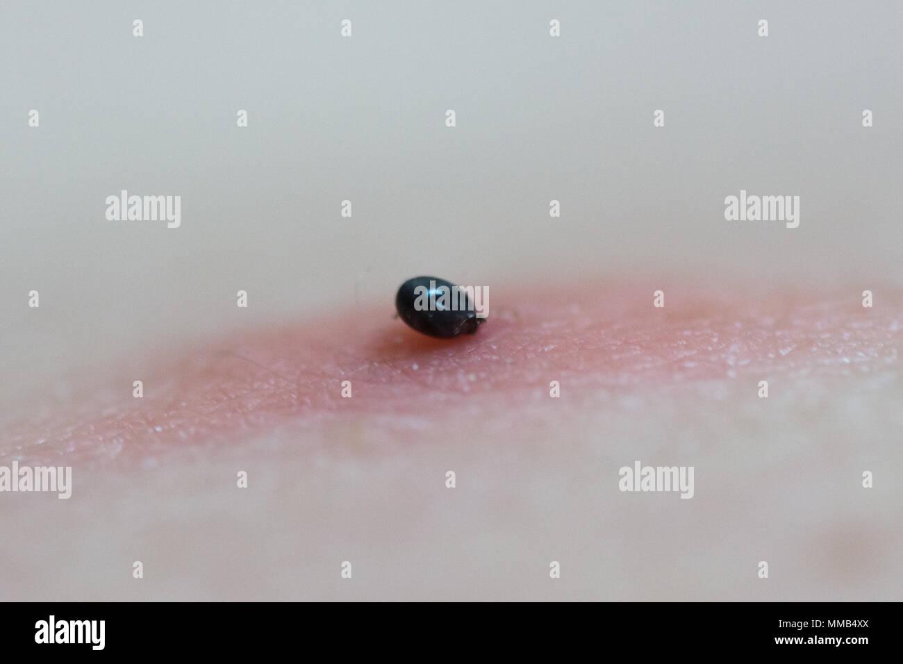 Un segno di spunta parassita sulla pelle umana con arrossate area infiammata Immagini Stock