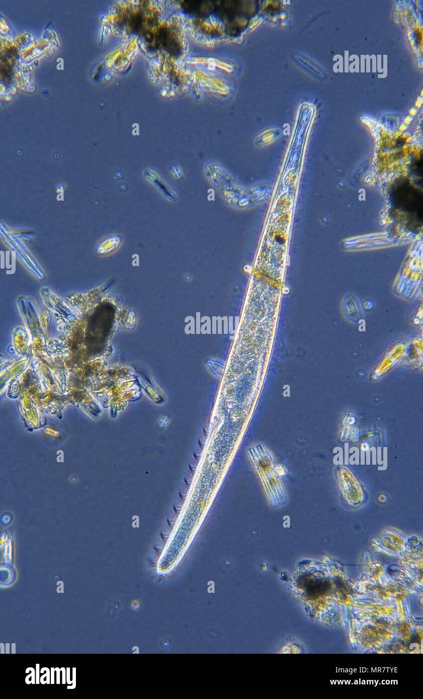 Spirostomum.Ciliata.protozoi.di microscopia ottica Immagini Stock