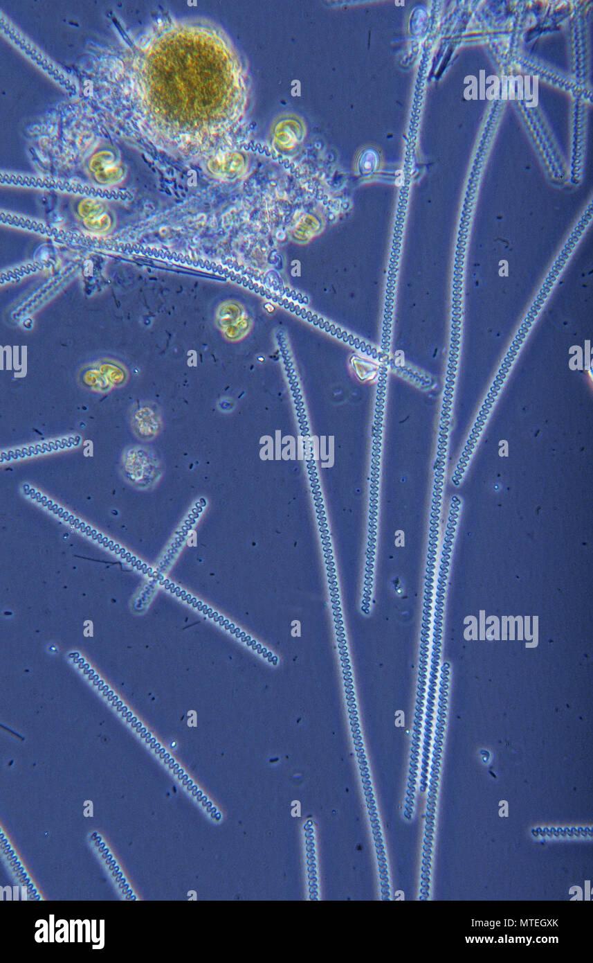 Spirulina sp.cianobatteri.procarioti.di microscopia ottica Immagini Stock