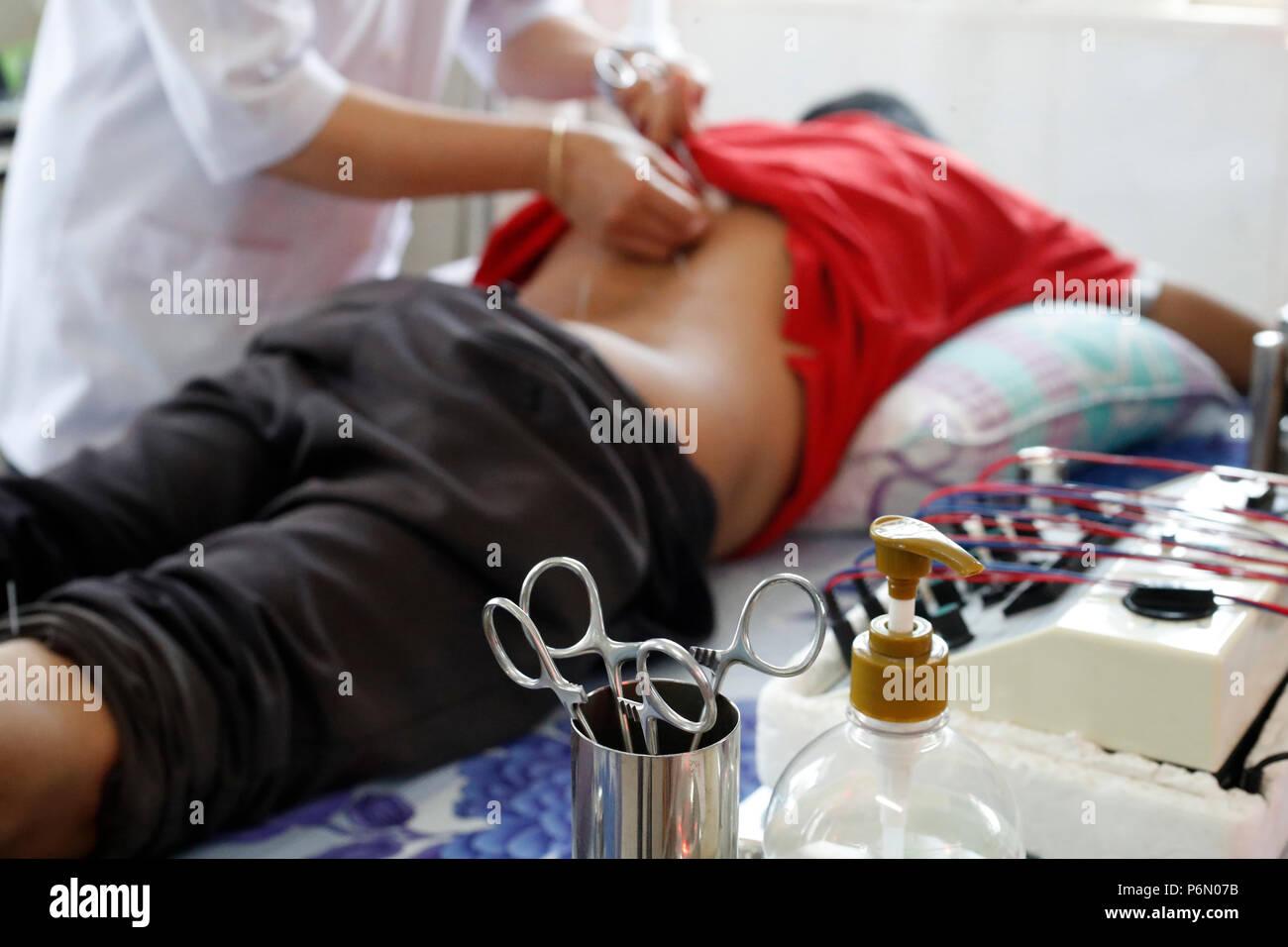 Tradizionale vietnamita medicina clinica. L'agopuntura. Cu Chi. Il Vietnam. Immagini Stock