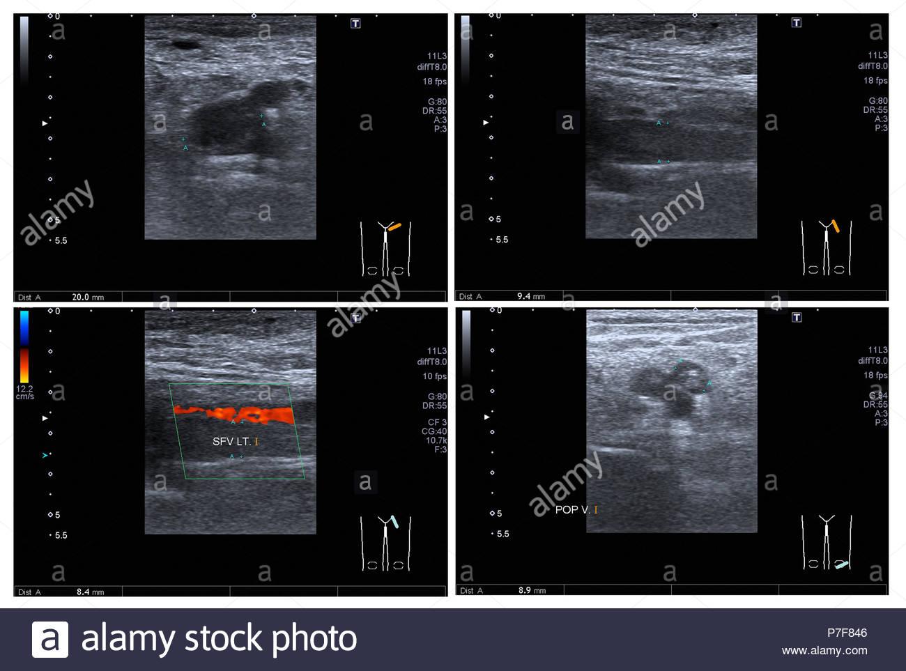 Ultrasuoni doppler a colori sia gamba:Hyperechoic trombo con dilatazione delle vene, a Lt femorale superficiale v. e popliteo v. Impressione: TVP acuta o Immagini Stock