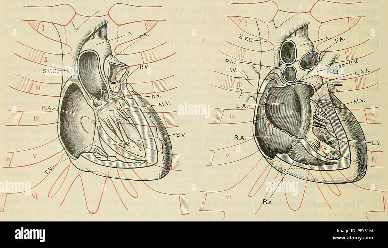 Pulmonary valves immagini & pulmonary valves fotos stock alamy