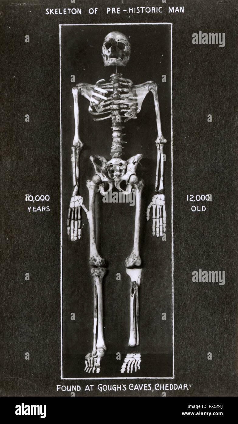 Scheletro di inizio l'uomo trovato Al Gough's Cave, Cheddar Gorge, Somerset. Nel 1903 i resti di un maschio umano, dal momento che il nome di Cheddar uomo, sono stati trovati a breve distanza all'interno di Gough Cave. Egli è Britains completo più antico scheletro umano, avente stato datato circa 7,150 anni A.C. Vi è un suggerimento che l uomo è morto di morte violenta, forse legati al cannibalismo, anche se questa non è stata dimostrata. Data: circa 1920s Immagini Stock