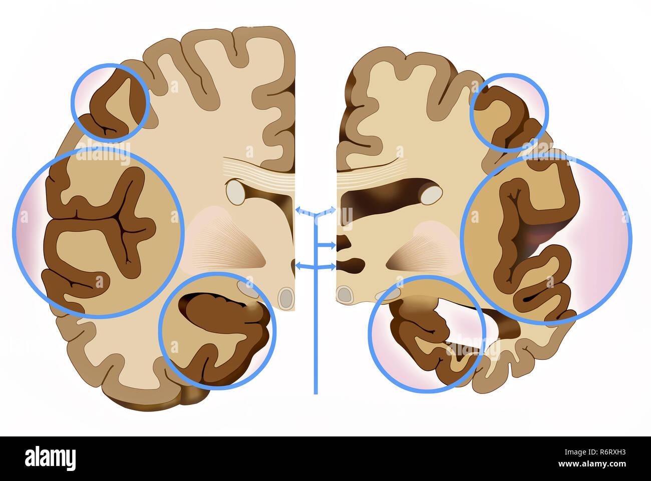 Differenza del cervello nella malattia di Alzheimer. Foto Stock