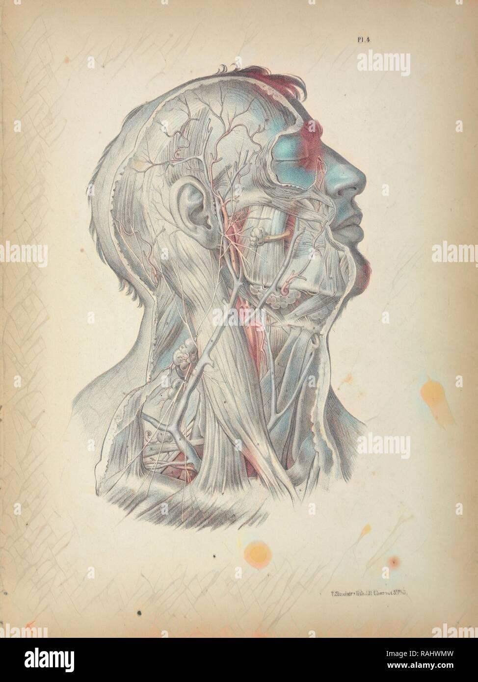 Pl. 4, anatomia chirurgica, Maclise, Giuseppe, litografia, 1851, litografia colorata. Maclise è autore e reinventato Immagini Stock