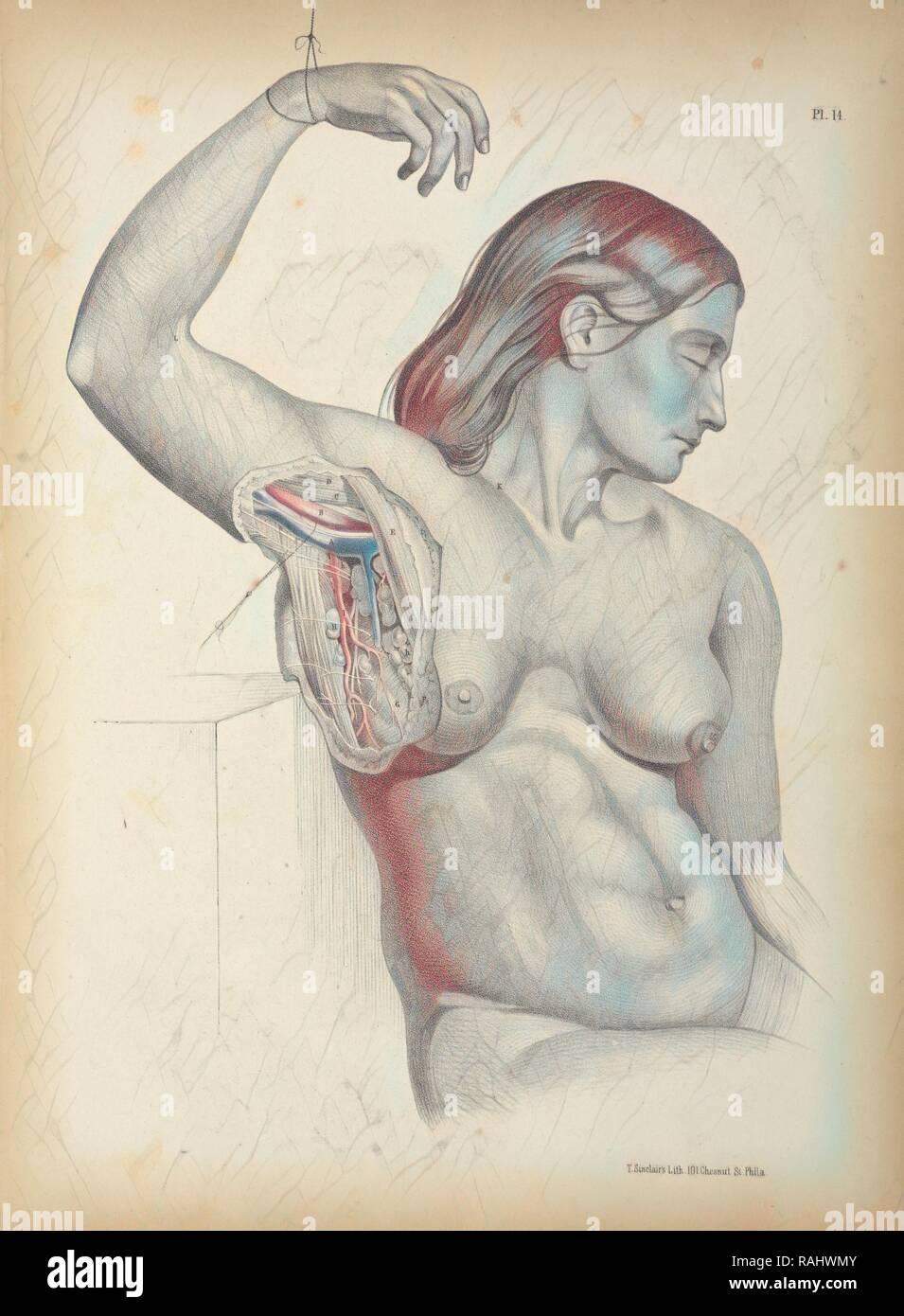 Pl. 14, anatomia chirurgica, Maclise, Giuseppe, litografia, 1851, litografia colorata. Maclise è autore e reinventato Immagini Stock