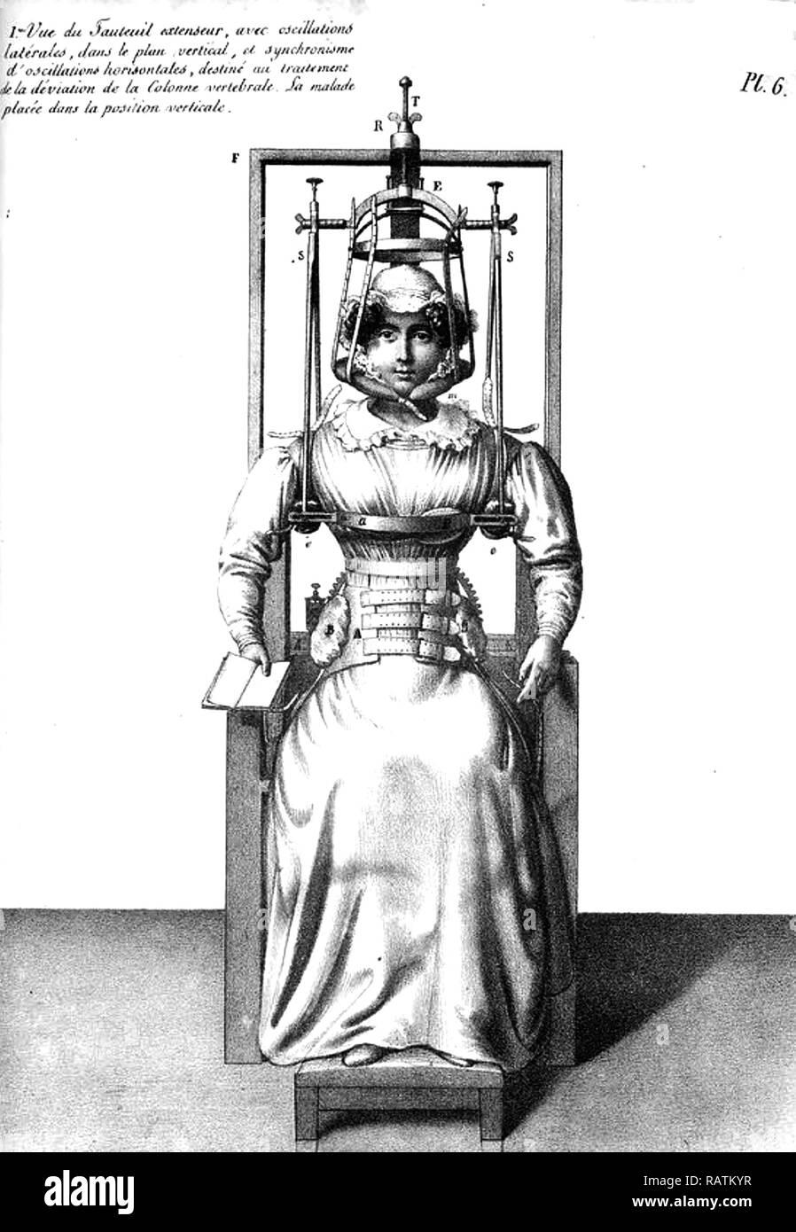 Correzione spinale in un libro francese del XVIII secolo Immagini Stock