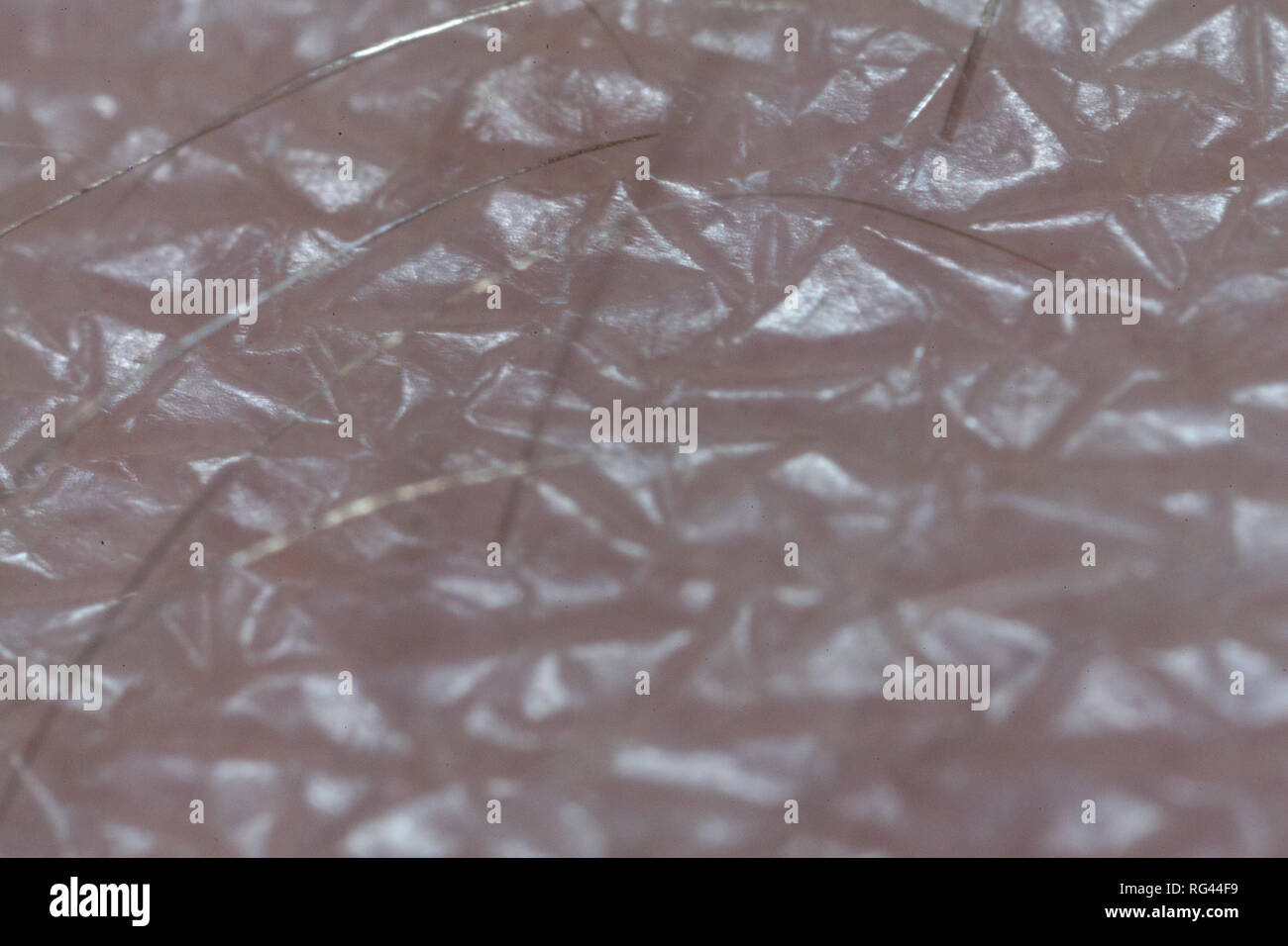La pelle umana con i capelli, Macro 5x Immagini Stock