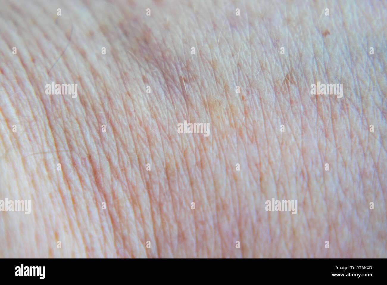 La texture della pelle umana di uomini Immagini Stock