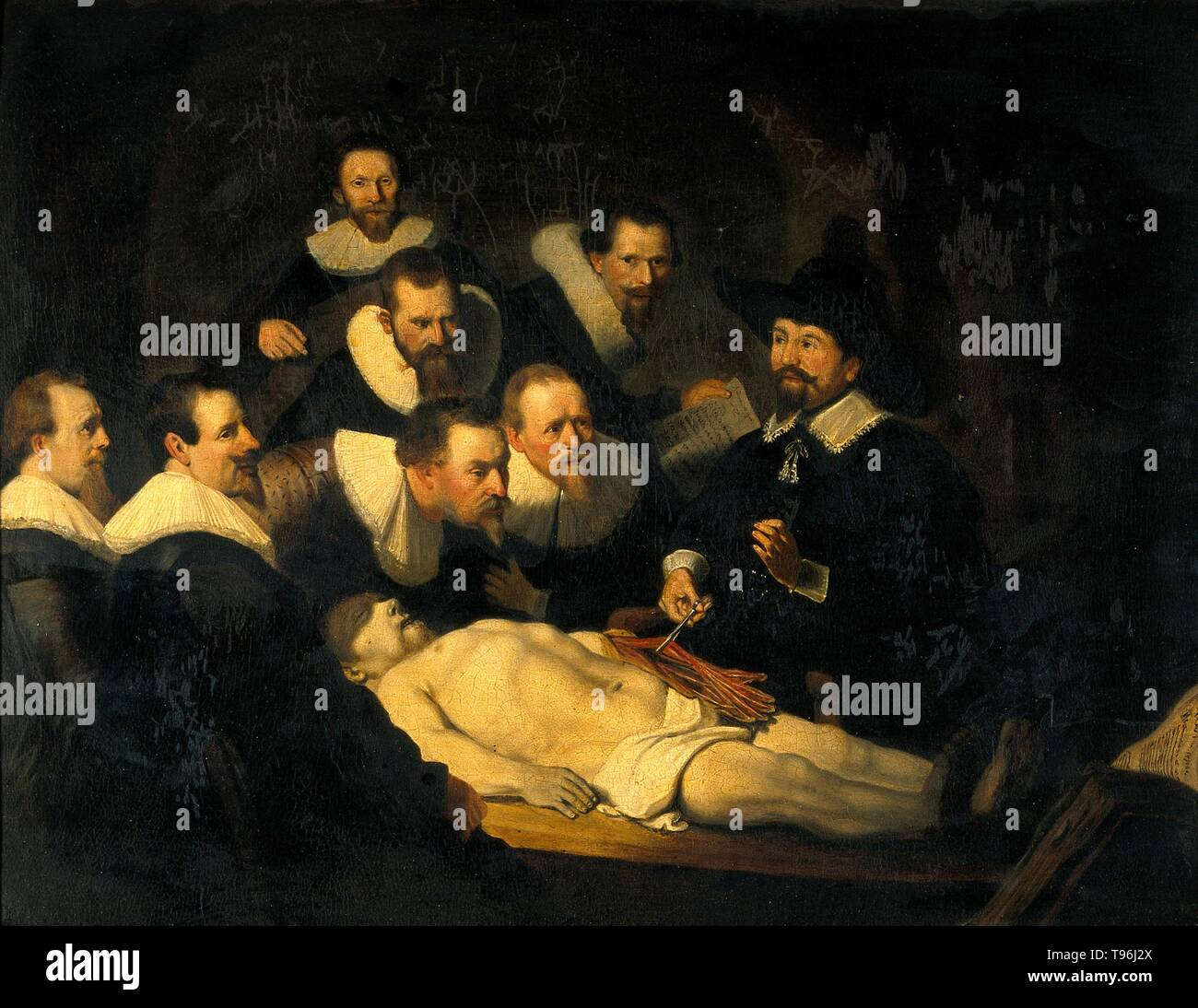"""Titolo: """"La lezione di anatomia del dottor Nicolaes Tulp"""" la riproduzione della pittura di Rembrandt van Rijn. Dissezione umana viene comunemente praticato nell'insegnamento di anatomia per gli studenti di medicina. Nessun divieto universale di dissezione o autopsia è stata esercitata durante il Medioevo. In alcuni paesi europei ha iniziato a legalizzare la dissezione dei criminali eseguito per scopi didattici nel tardo XIII e inizi del XIV secolo. La Lezione di anatomia del dottor Nicolaes Tulp è un 1632 olio su tela di Rembrandt. Tulp è raffigurato per spiegare la muscolatura del braccio per i professionisti del settore medico. Alcuni o Immagini Stock"""