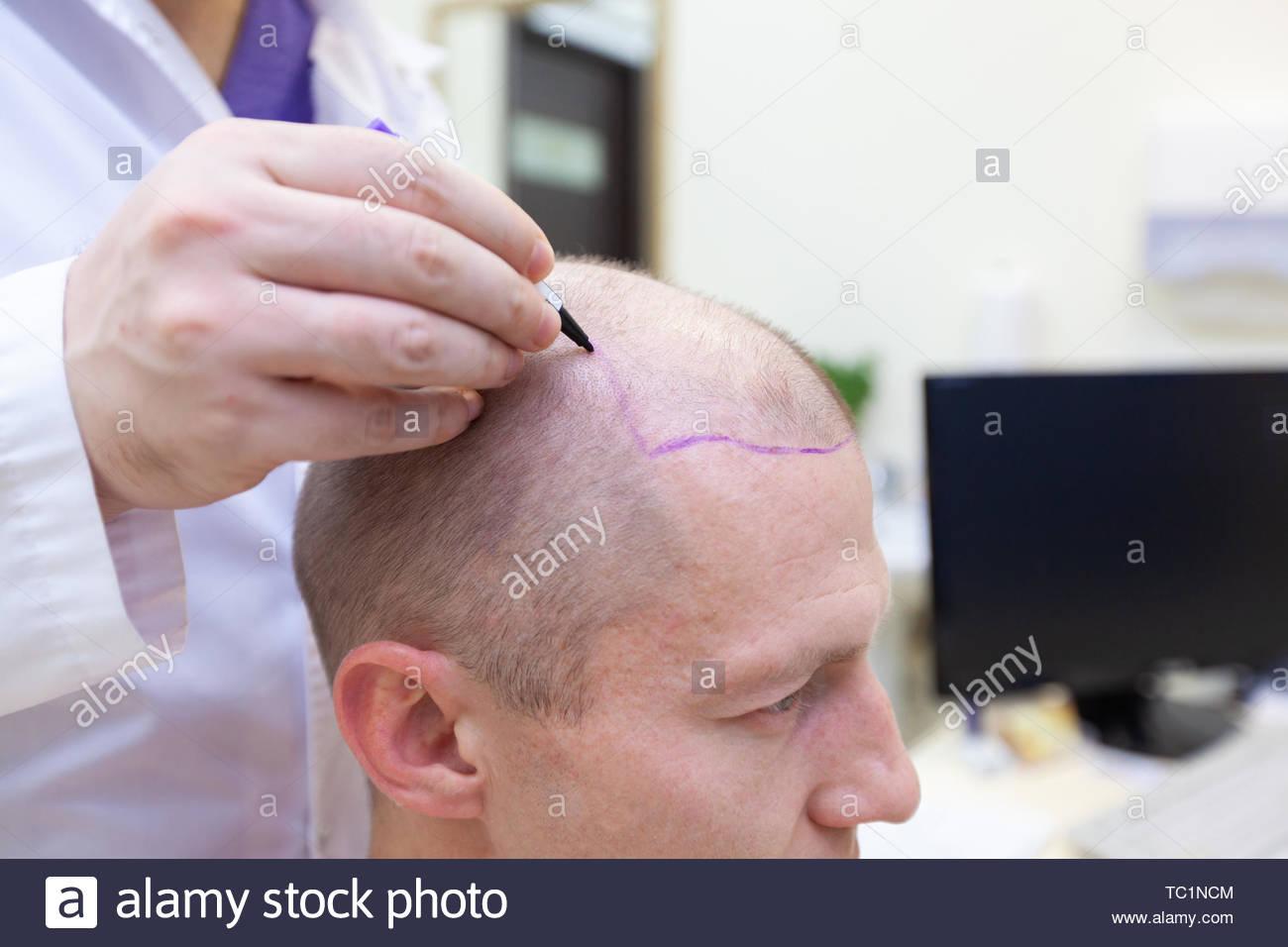 Trattamento della calvizie. Paziente che soffre di perdita di capelli in consultazione con il medico. Preparazione per il trapianto di capelli chirurgia. La linea di marcatura Immagini Stock