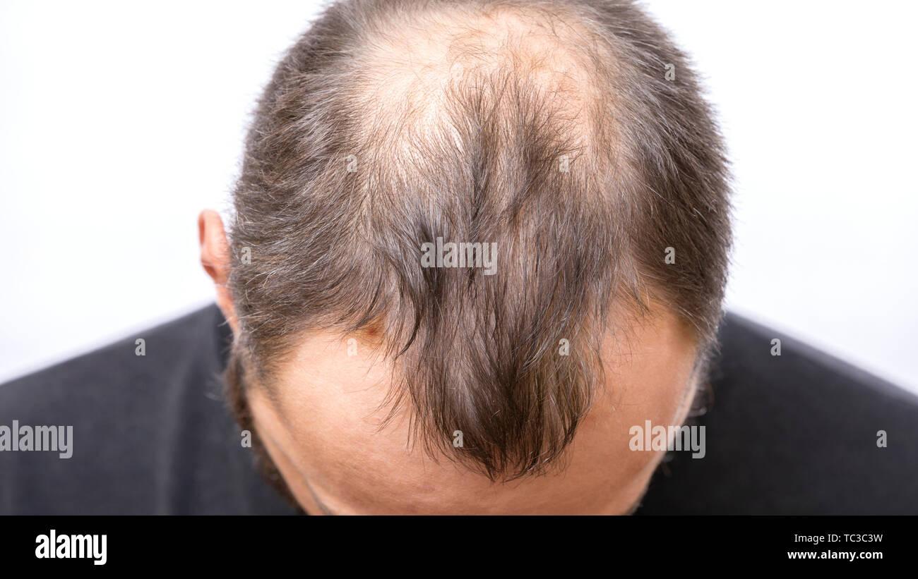 Balding giovane, la perdita di capelli problema. Calvizie preoccupato Immagini Stock