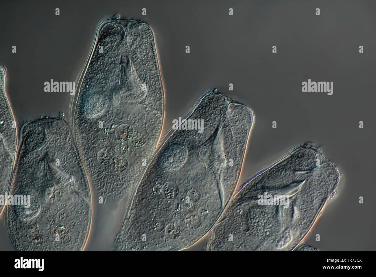 Vorticelle (vorticelle spec.), testa, Nomarski microscopia, Germania Immagini Stock
