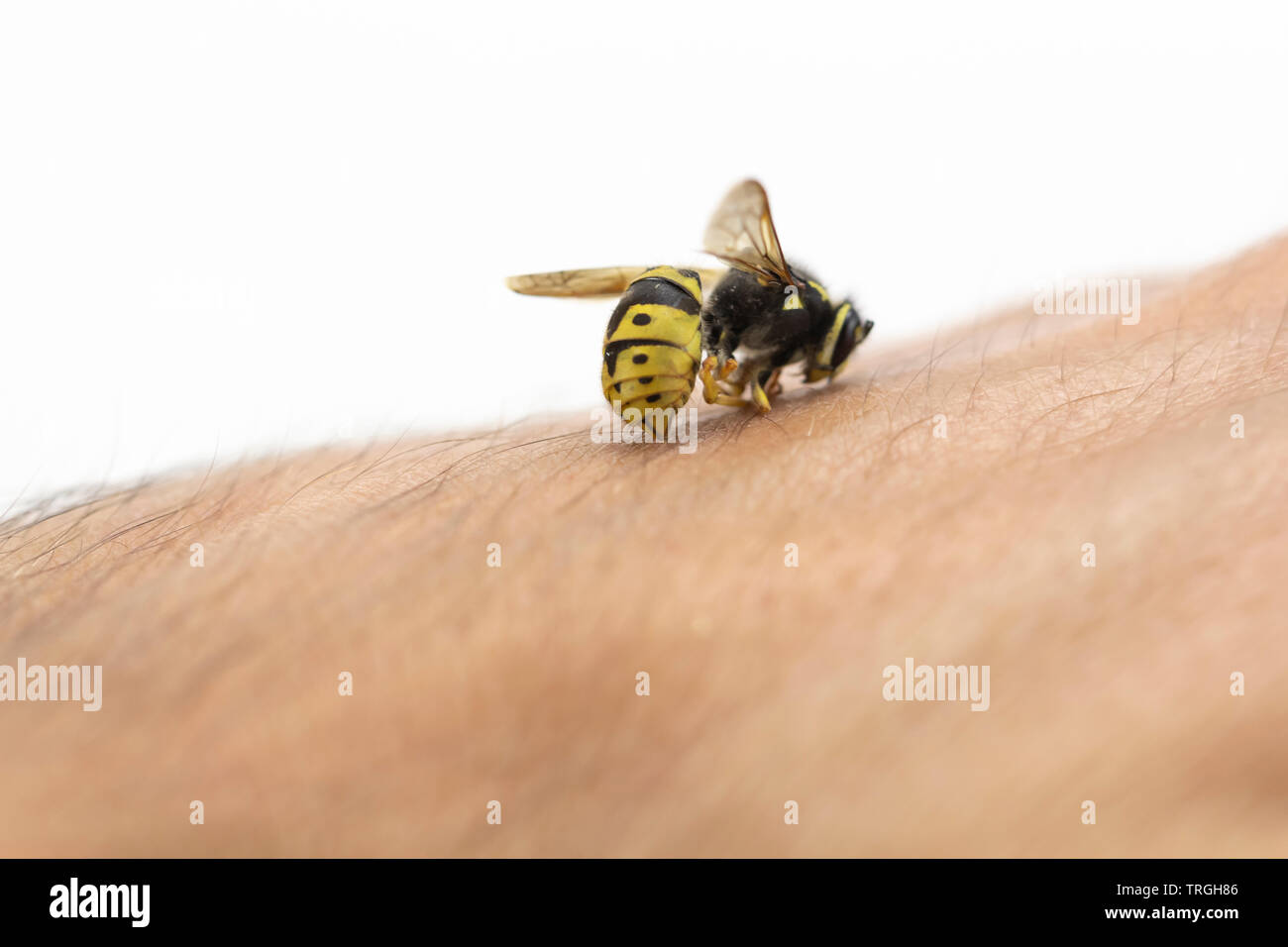 Punture d api nella pelle umana, macro shot Immagini Stock