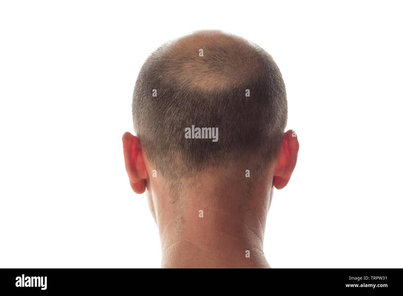 Uomo calvo vista posteriore, testa con perdita di capelli Immagini Stock