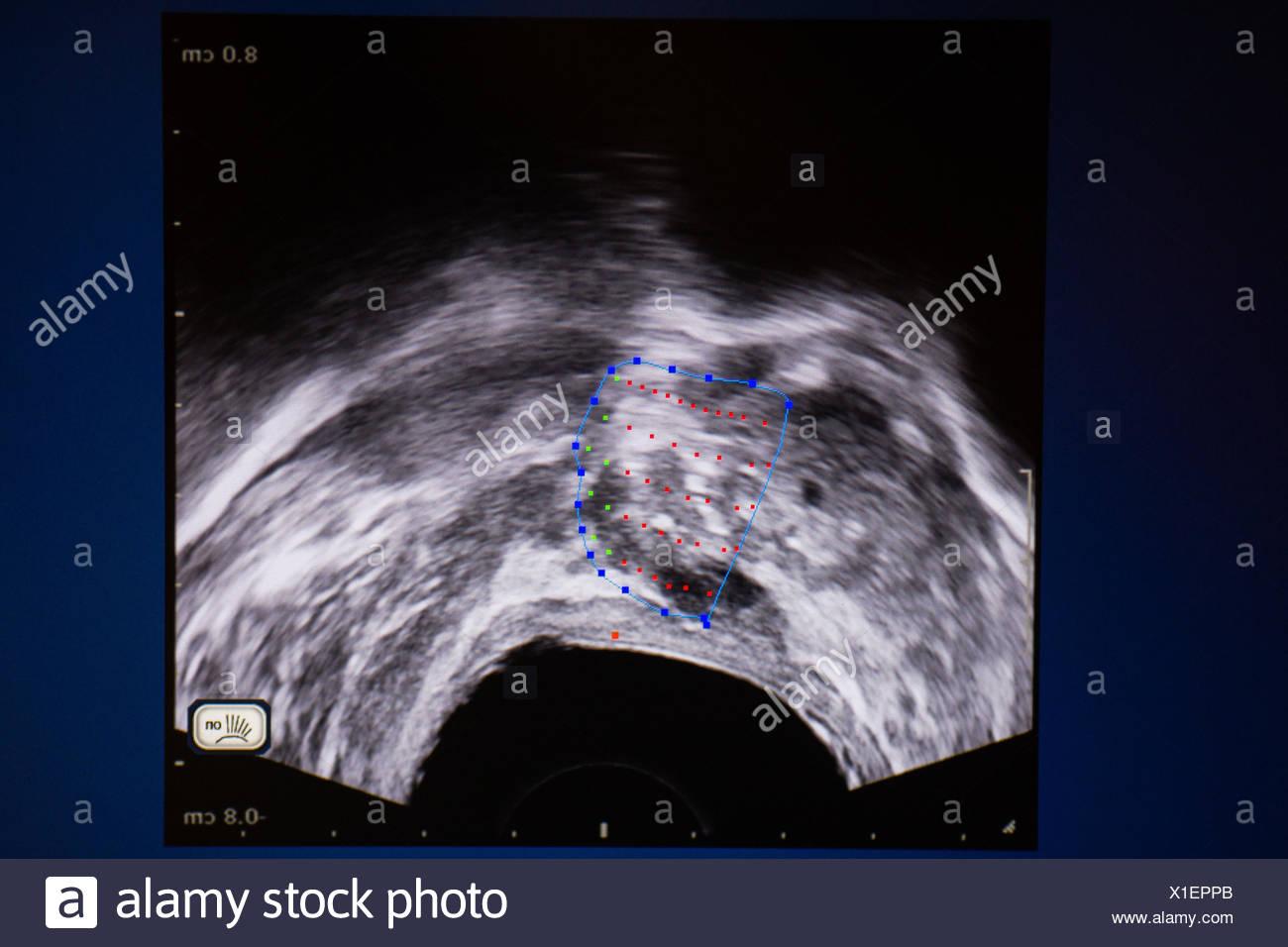 Il trattamento del cancro della prostata da alta intensità di messa a fuoco (ultrasuoni Focal-One). Institut Montsouris, Parigi, Francia. Immagini Stock