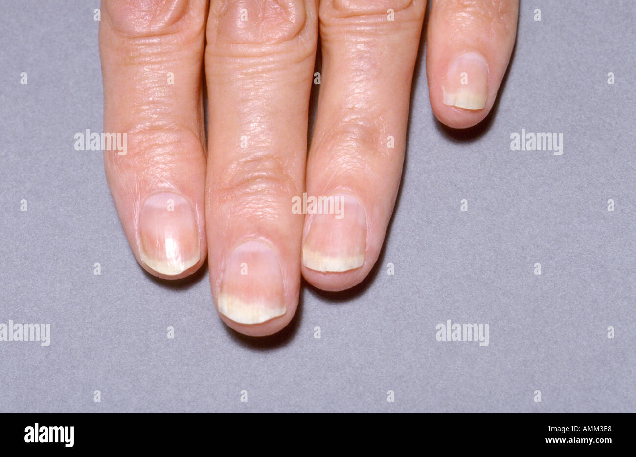 Chronic fungal infection fingernails Stock Photo: 2835431 - Alamy