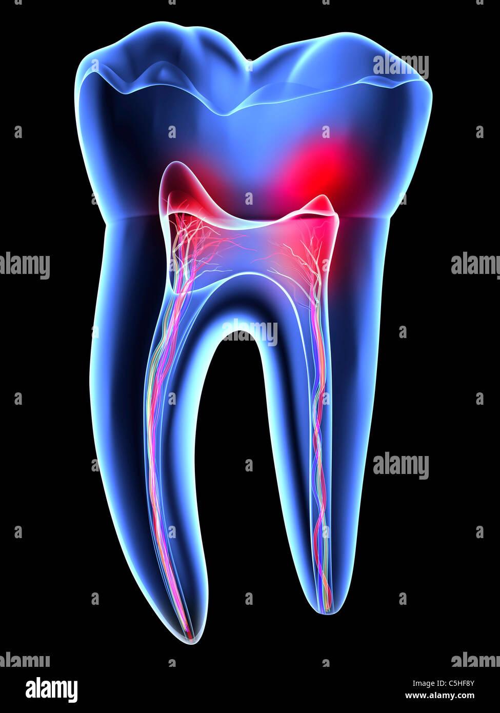 Dor de dente, odontalgia Imagens de Stock