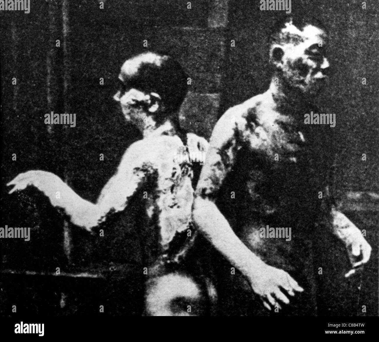 Dois queimar após a explosão atômica em Hiroshima,1945 Imagens de Stock
