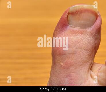 Make big toe - Stock Image