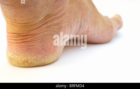 Male heal in desperate need of a pedicure - Stock Image