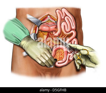 Suturing Serosal Tears of the Small Bowel - Stock Image