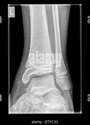 Healthy X-ray of an ankle 12 year old male front view - Stock Image