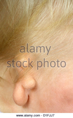 MICROTIA AND AURAL ATRESIA - Stock Image